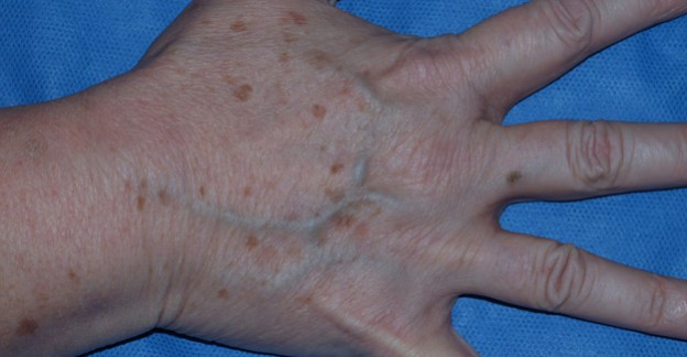 La desaparición de la pigmentación senil sobre la persona