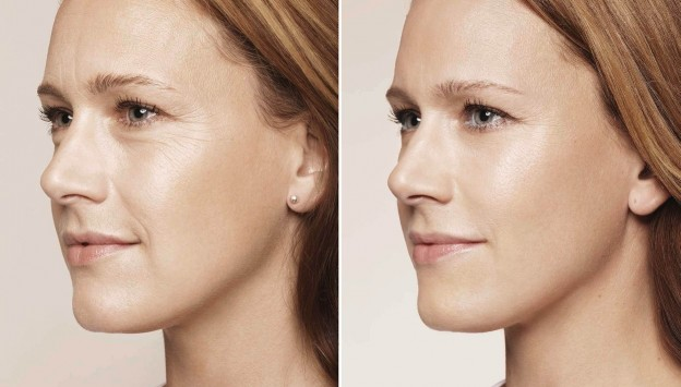 botox Openderma Murcia before and after