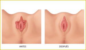 Rejuvenecimiento vaginal Murcia Openderma