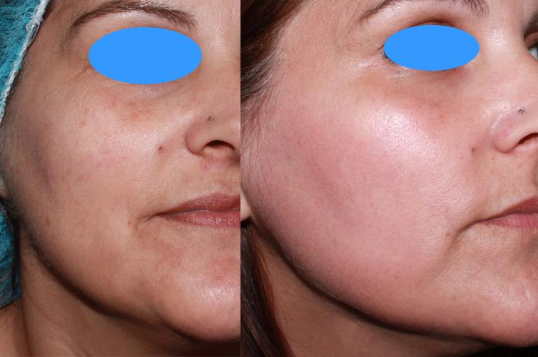 rejuvenecimiento facial laser co2 murcia openderma